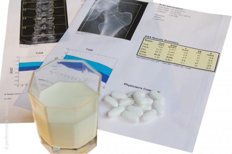osteodensitometrie mittels dxa als kassenleistung nach gop. Black Bedroom Furniture Sets. Home Design Ideas