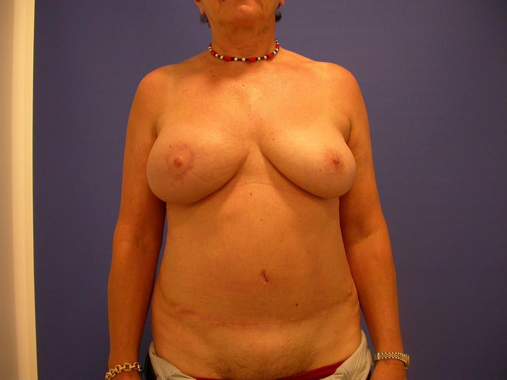 OEBPS/images/02_06_A_07_2014_Brust_image_01c.jpg